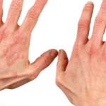 Dermatitis kao profesionalno oboljenje frizera