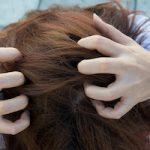 ZDRAVLJE <br> Frizerka otkrila simptome raka kože na glavi klijentice